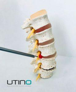 Endoscópio para cirurgia da coluna